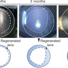 Eye lens from patients' own stem cells, restoring vision