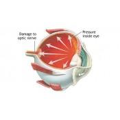 Glaucoma (0)